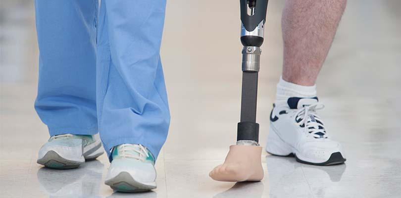A doctor walking with an amputation patient.